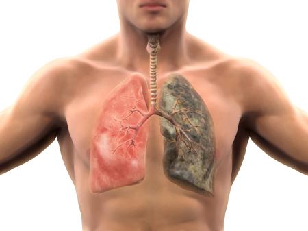 <strong>2018世界肺癌日:戒烟时会发生什么?</strong>