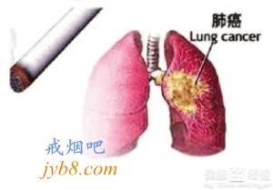 布洛芬可减少吸烟者死于肺癌的风险!