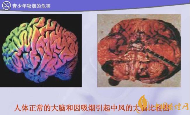 吸烟对身体有哪些危害 吸烟对大脑有什么危害(影响智力记忆力)
